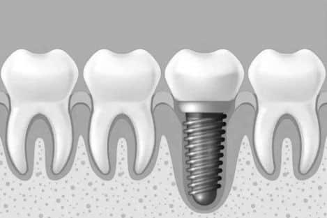 种植牙会影响核磁共振吗?
